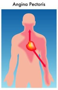 Angina Pectoris Behandlung