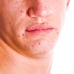 Globuli gegen Pickel und Akne
